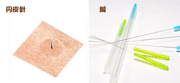 円皮鍼と鍼の違い