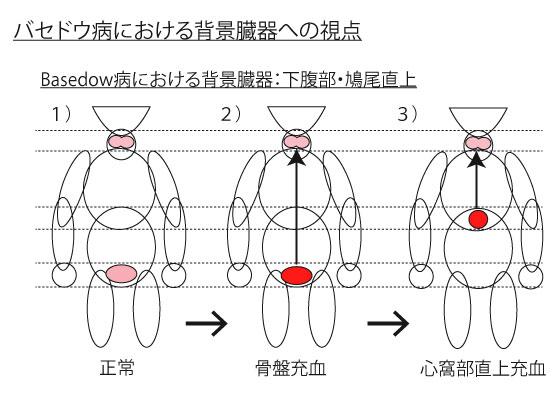 バセドウ病の原因臓器