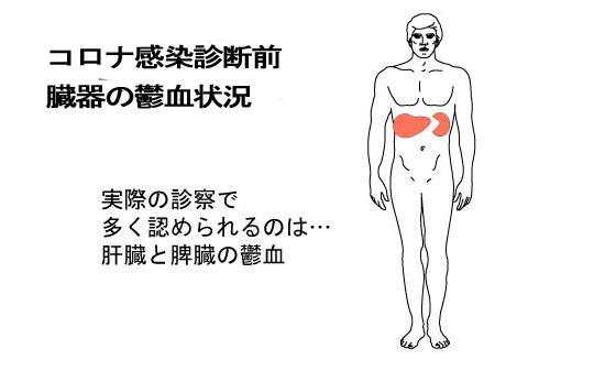 コロナ感染の臓器鬱血